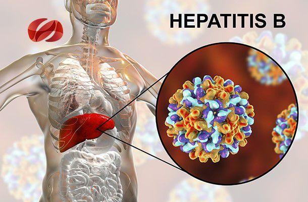 Principales conclusión del Virus de la hepatitis B