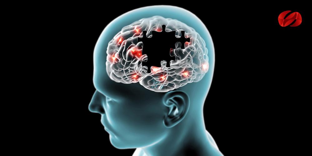 Nuevos hallazgos del Alzheimer